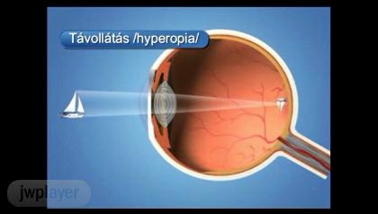 videó a lézeres szemműtétről megszabadulni a myopiától szemüveg nélkül